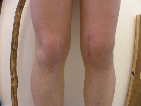 Knee small effusion ,cant bend knee.