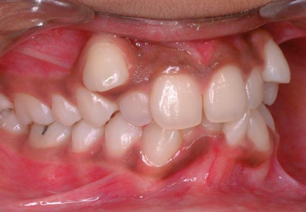 How can I help  malocclusion?