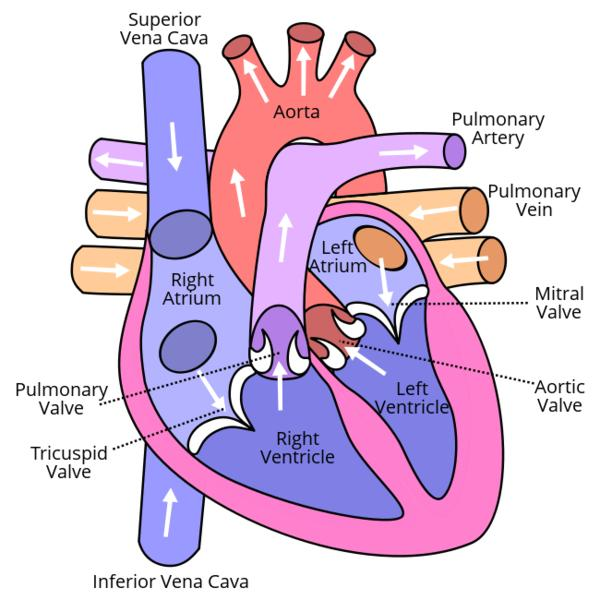 Is there a heart valve disease that causes elevated systolic and diastolic blood pressures?