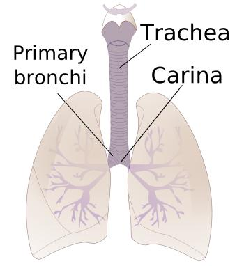 Best treatment for bronchoconstriction?