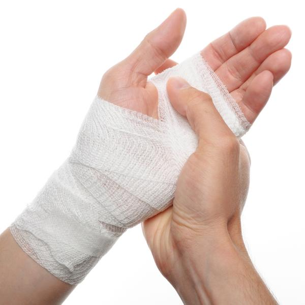 I am not sure if my hand has been sprained, fractured or even broken. My hand had bent all the way back and I am not sure what to do and it won't bend?