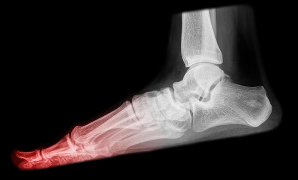 What, other than a bacterial infection, would cause an inch of bone to crumble? A bone infection was evident in an X-ray and MRI following the straightening of a hammer-toe. Upon removal of the surgical screw, approx. An inch of bone crumbled. The biopsy