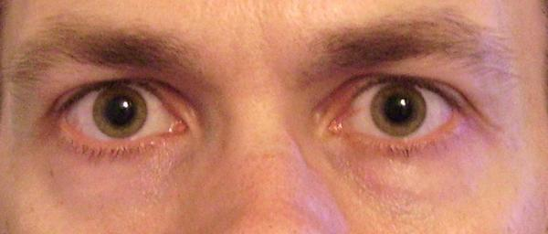 Brain tumor? I notice one pupil is just slightly larger than the other pupil. This happens to be the eye I get migraines in.