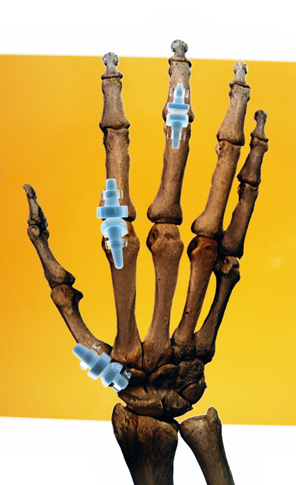 Can clicking your bones and joints really give you arthritis?