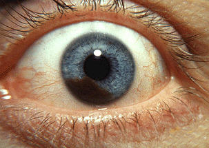 What is the treatment for intraocular melanoma?