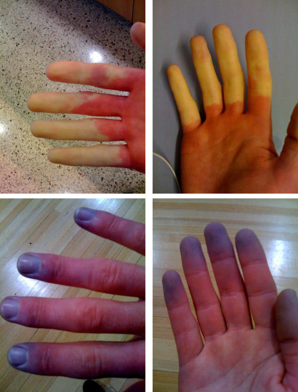 What could cause numbness and bluing in my fingers and i also have chest pain.