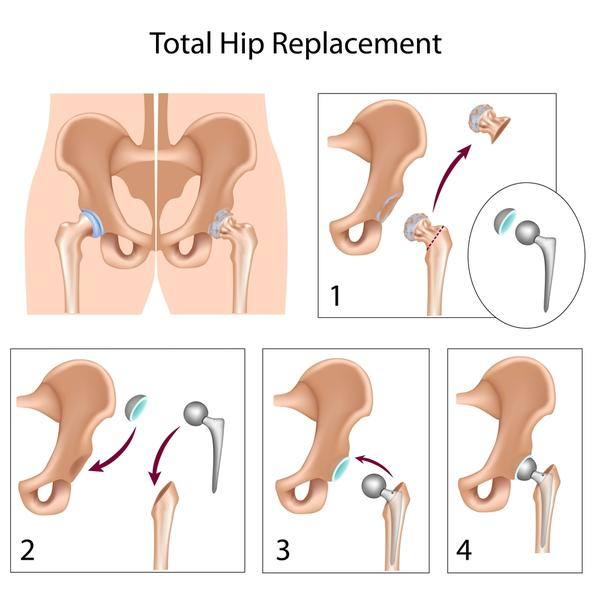 How many people under 56 have had a total hip replacement?