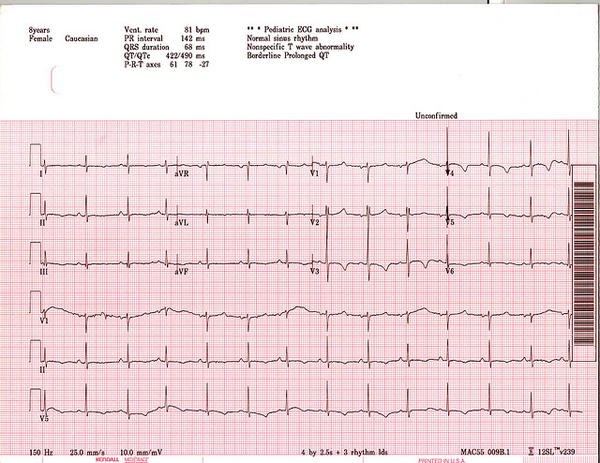 Does anyone know about long qt syndrome?