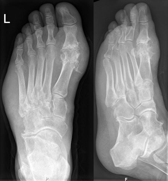 How does gout affect the skeletal system?