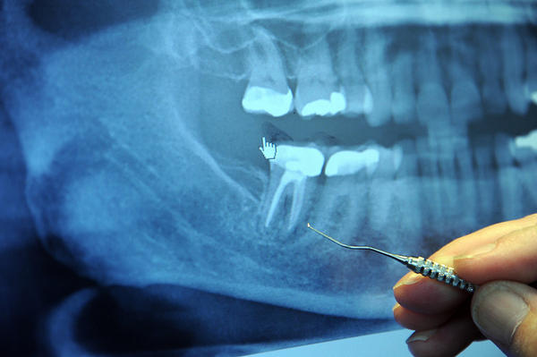 How long after a crown-lengthening does a dentist wait before an impression for final crown?