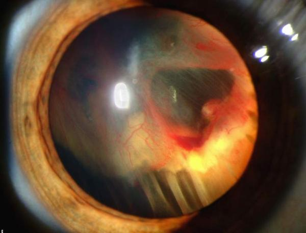 What causes your depth perception to be off after a vitrectomy for a detached retina?