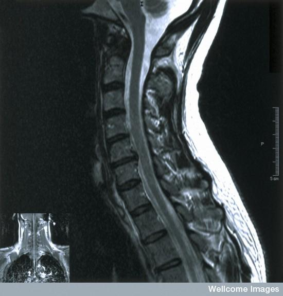 What is a cervical disc replacement and fusion with titanium plates and screws?