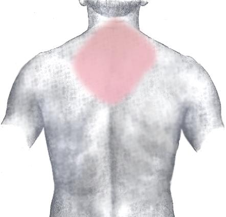 Upper back pain (skin fells sore)  rib cage pain on both sides but more noticeable on front lower left ribs. What could it be?