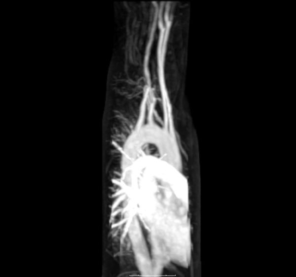 Mri image of aorta show aorta white but I didn't take any contrast, how did they vizualise my aorta and would they have seen a dissection w/o contrast?