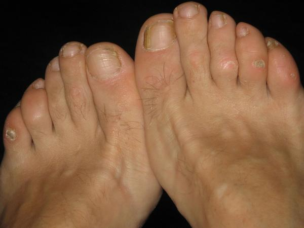 I have a line of pinpoint holes/calluses under my second toe on both feet. Are they plantar warts, or something else?