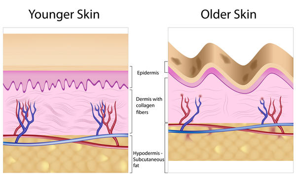 What causes age spots to form?
