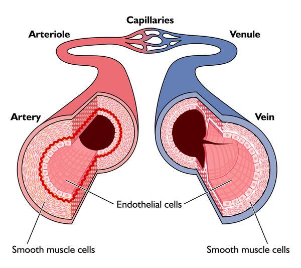 Varicocele Embolization Through Neck