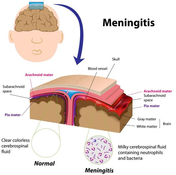 Will an MRI on brain without contrast show if there is inflammation from meningitis?