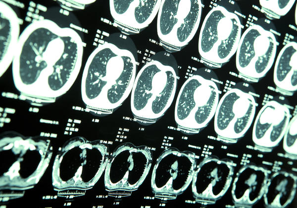 Why does lung cancer spread to the brain so often?