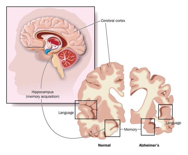 What's the neurological background of Alzheimer's disease?