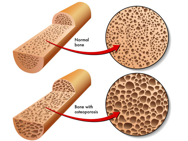What are the effects of osteoporosis on muscles?
