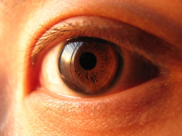 What is an opthamologist looking for to confirm viral pink eye is gone and its now safe to wear your contacts?