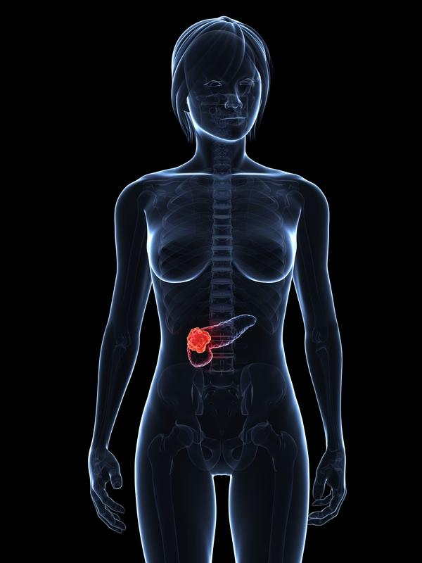 Does pancreatictist lead to pancreatic cancer  ?