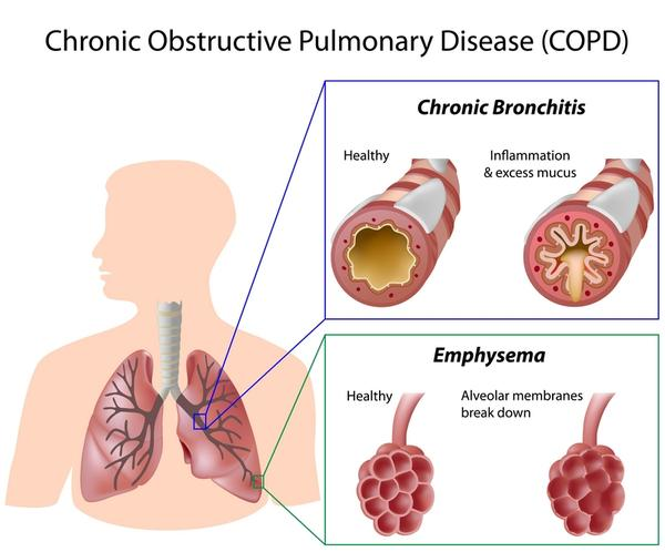 What are causes of alveolar wall damage in copd?