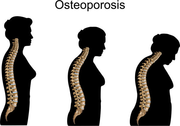 What are some signs of osteoporosis?