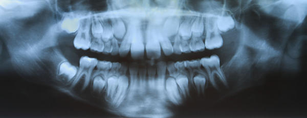 How long does it take penicillin to help impacted wisdom tooth?