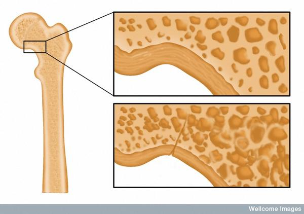 Can osteoporosis or osteopenia cause a compression fracture in the vertebrae?