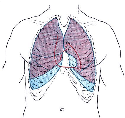 Restricted lungs due to swollen abdomen of triplets. What is relief?