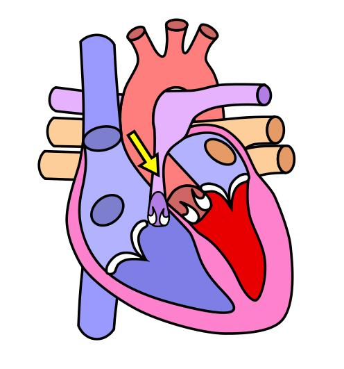 How does mitral stenosis affect the heart?