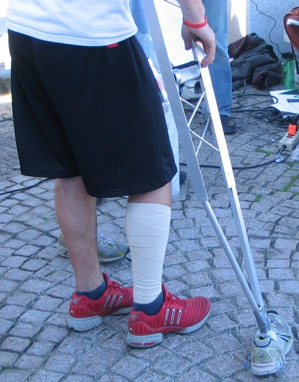 Further injury to a broken leg, what to do?