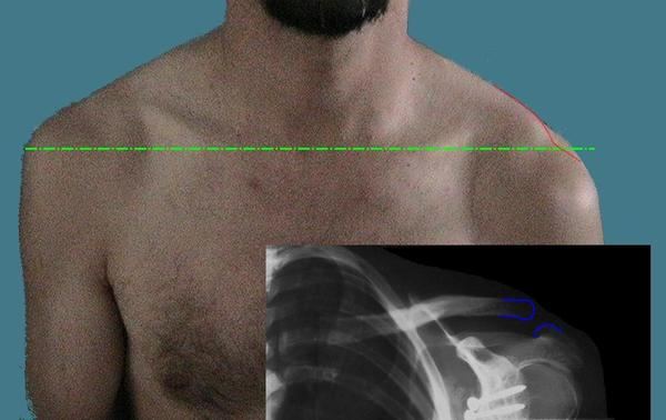 I had an X-ray of the shoulder.  Results were moderate to advanced into joint disease of the left acromioclavicular joint.  What does this mean?