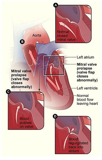 What can cause mitral valve prolapse?