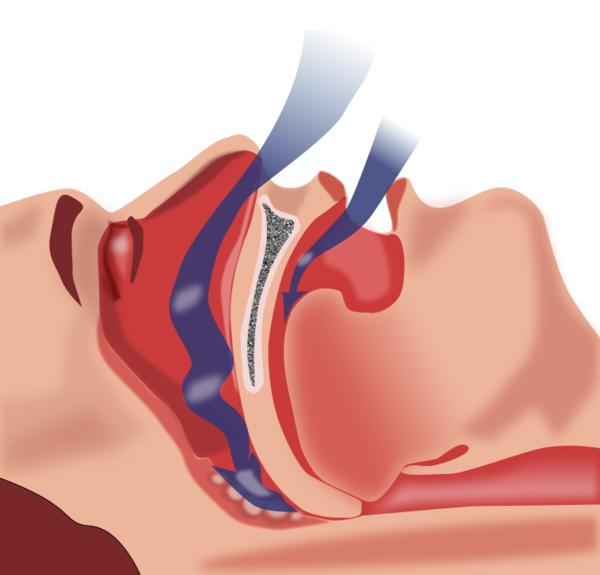 Can a deviated septum cause sleep apnea?