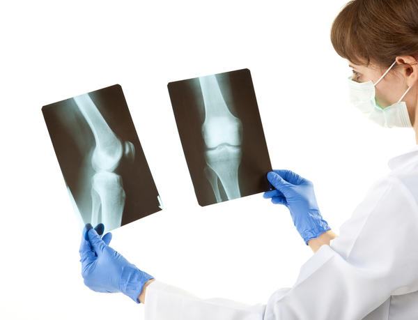 How can treat with knee osteoarthritis?