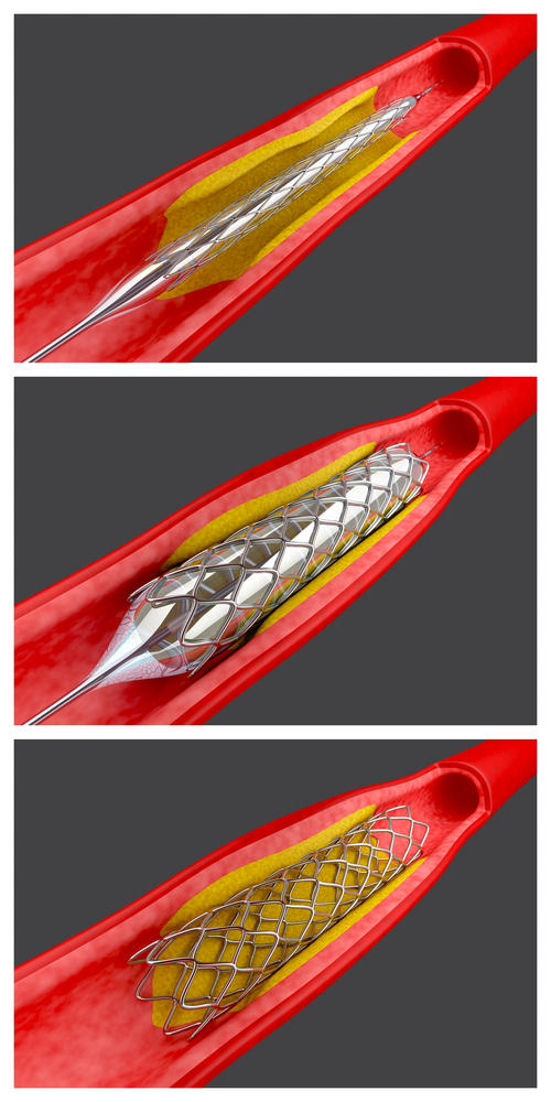 What happens during intravascular stent placement?