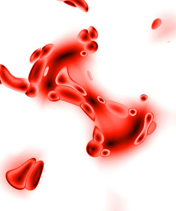 What can cause small traces of blood in urine?