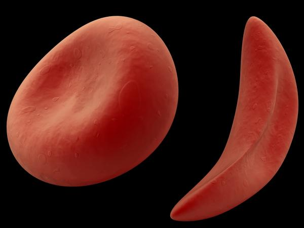 What are the symptoms of sickle cell trait vs anemia?