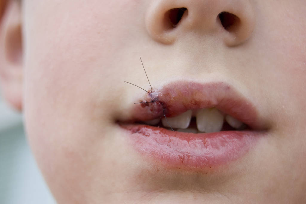 lip laceration   answers on healthtap